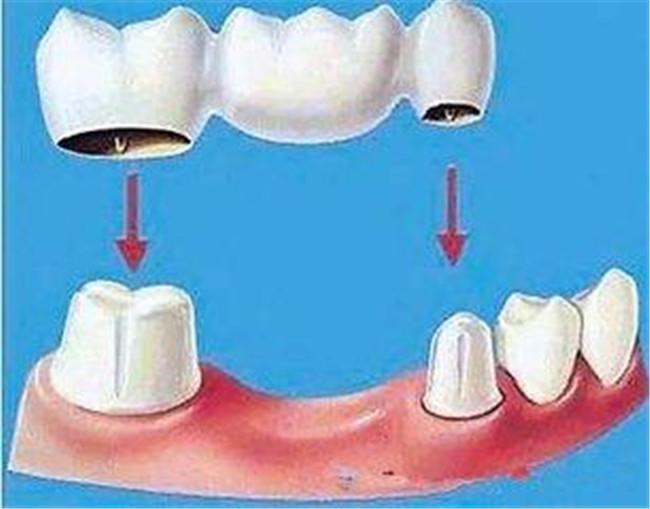 镶牙-不拔牙能镶牙吗