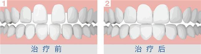 怎么健康美白牙齿